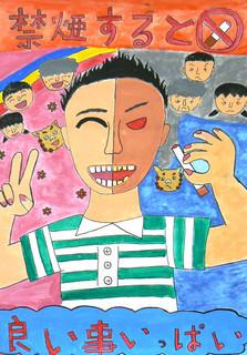 八重山保健所が募集した「禁煙及び受動喫煙防止に関するポスター」の最優秀賞に輝いた前盛朱琳さんの作品(八重山福祉保健所提供)