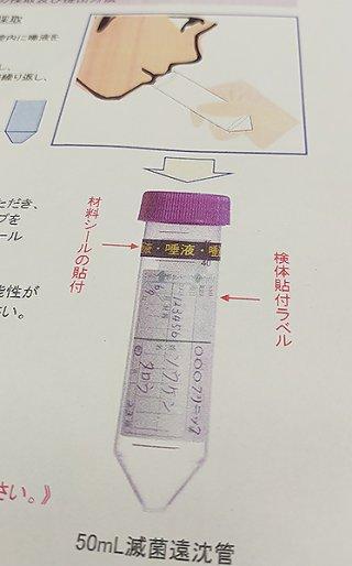 唾液でのPCR検査キットのイメージ図。唾液を容器に入れ検査機関に発送する
